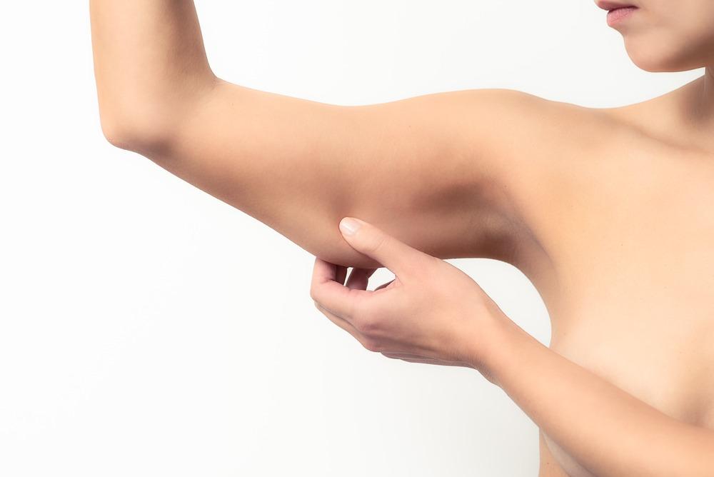 Liposukcija ruku