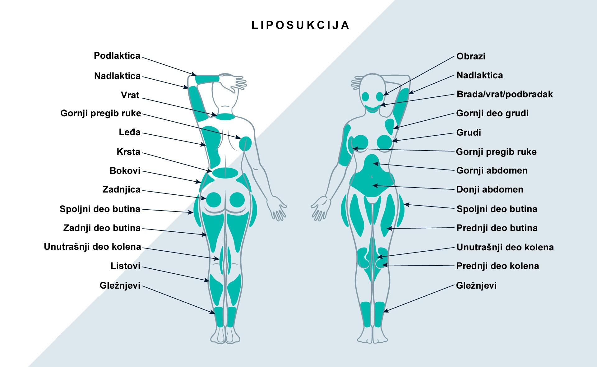 Liposukcija se najčešće radi na stomaku, podbratku, bradi, licu, rukama, nogama