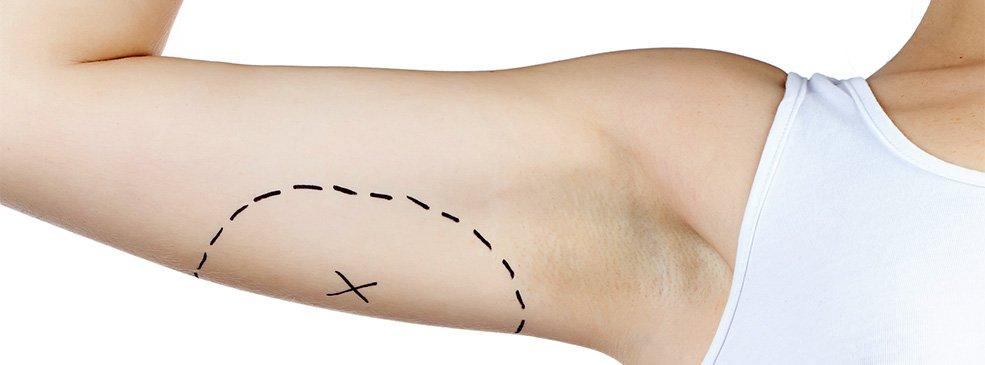 Operativna tehnika liposukcije ruku