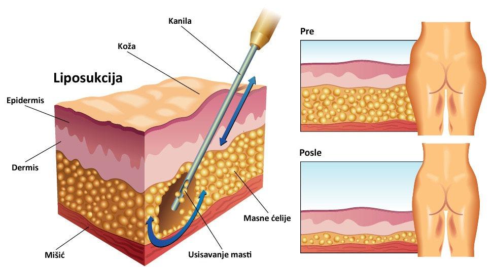 Operativna tehnika liposukcije