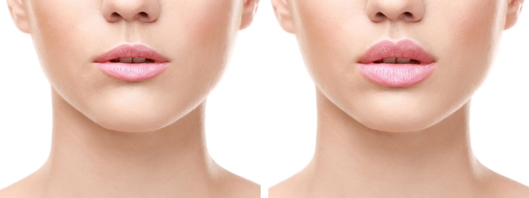 Povećanje (augmenatcija) usana