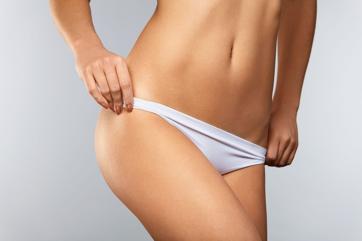Zatezanje stomaka abdominoplastikom
