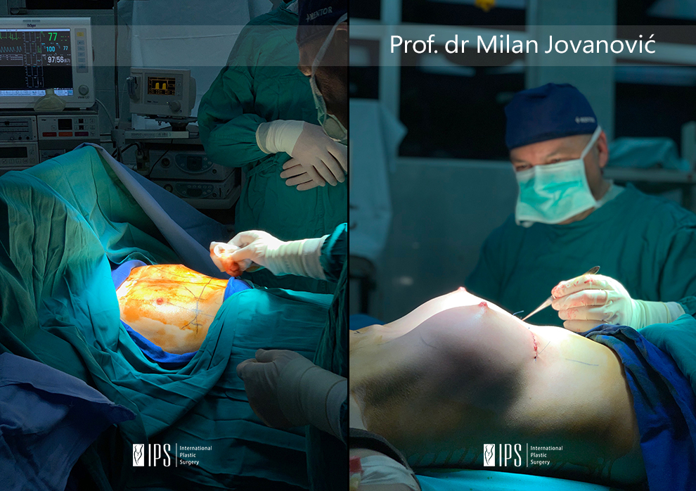 Ugradnja silikona (povećanje grudi silikonima) - dr Milan Jovanović - pre i posle slika