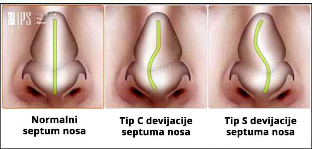 Tip devijacije nosa - Normalni, tip C i tip S