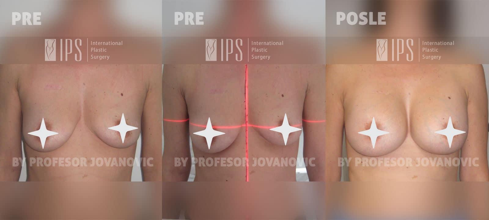 Asimetrija i augmentacija dojki (bez ožiljaka) - pre i posle, napred