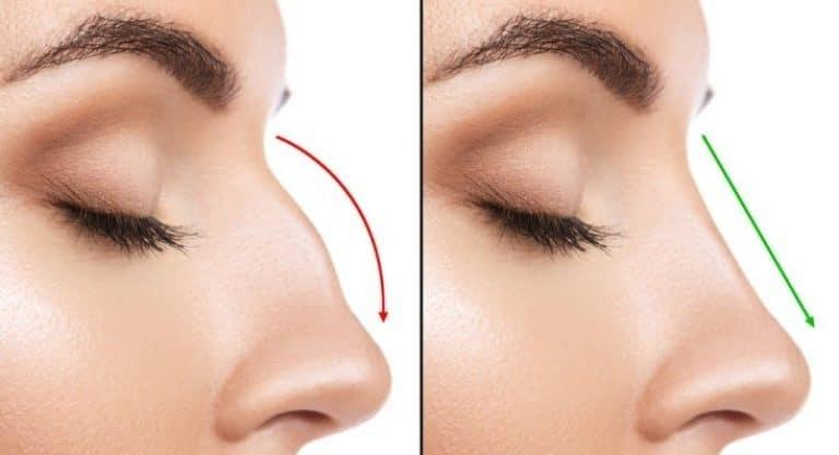 Grbav nos je izuzetno nepoželjan kod oba pola