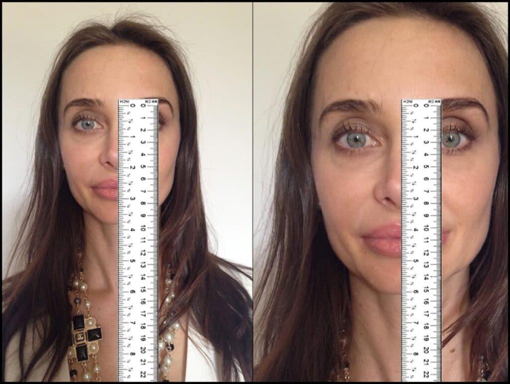 Merenje dužine nosa lenjirom je jednostavan i efikasan metod