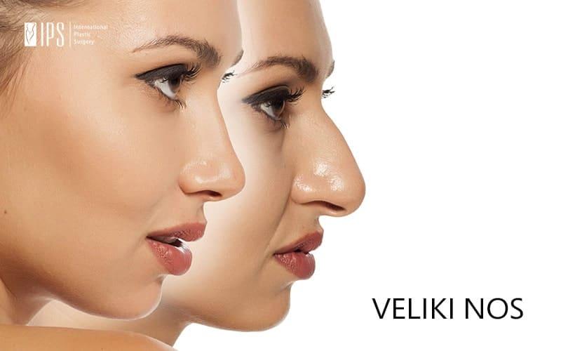Preveliki nos dominira čitavim licem