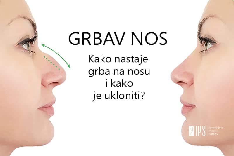 Nosna grba - kako ispraviti grbav nos?