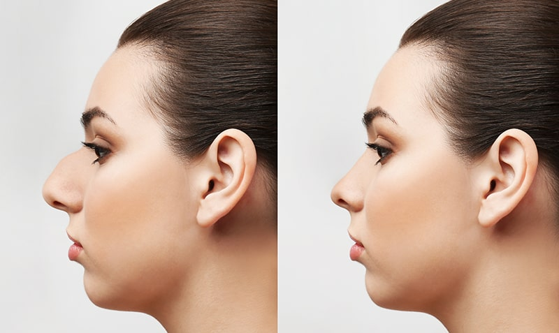 Uklanjanjem grbe postiže se sklad lica