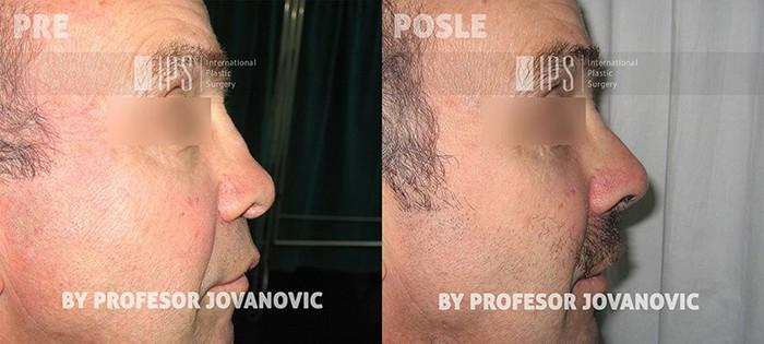 Kod muškaraca se pogotovo ne sme preterati sa korekcijom grbe i vrha nosa