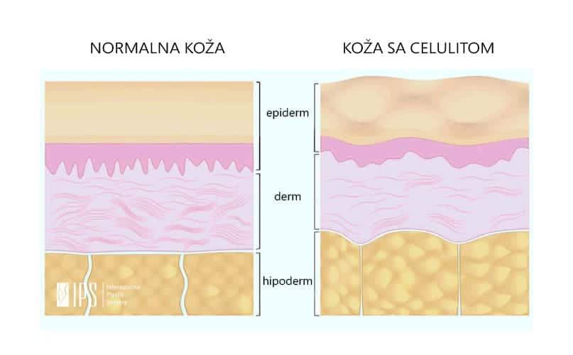 Potkožno masno tkivo sa normalnim masnim ćelijama i masne ćelije sa deponovanim viškom