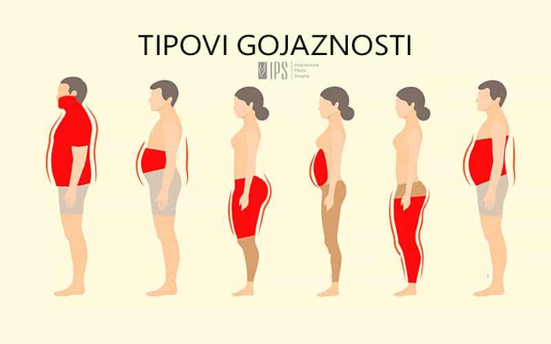 Tipovi gojaznosti