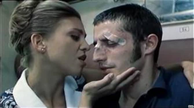 Snažna trauma nosa izaziva deformitet u vidu grbe