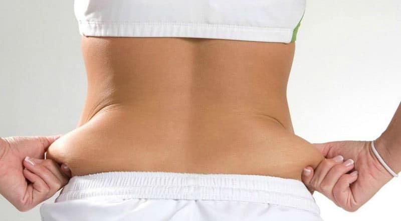 Šlauf - masne naslage na stomaku