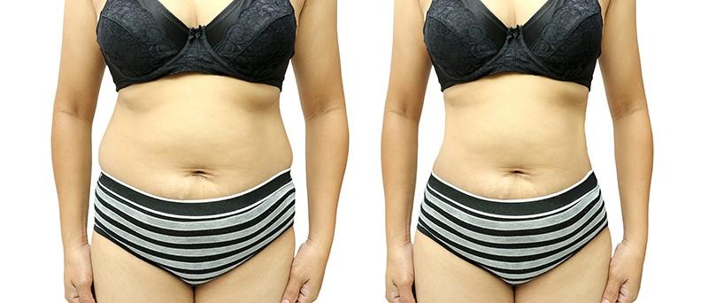 Stomak pre i posle liposukcije