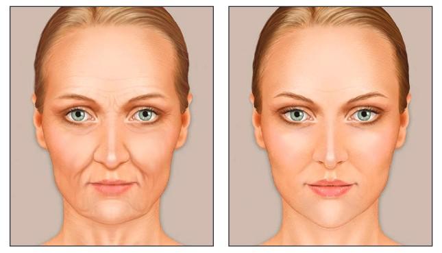 Lice žene pre i posle lipofilinga