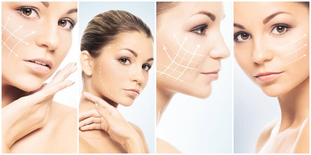 Ulepšavanje lica lipofilingom