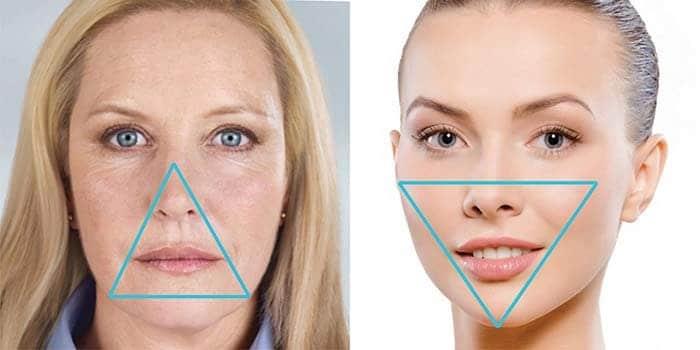 Oblik lica kao obelezje lepote se postize lipofilingom