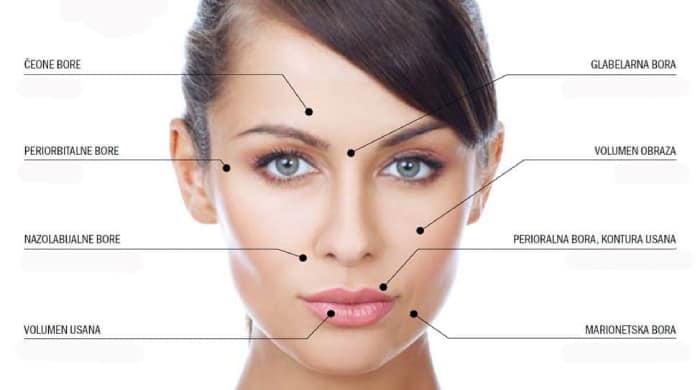 Regije na licu koje su najčešće za lipofiling