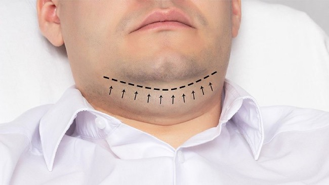 Metode estetske hirurgije u uklanjaju podbradka