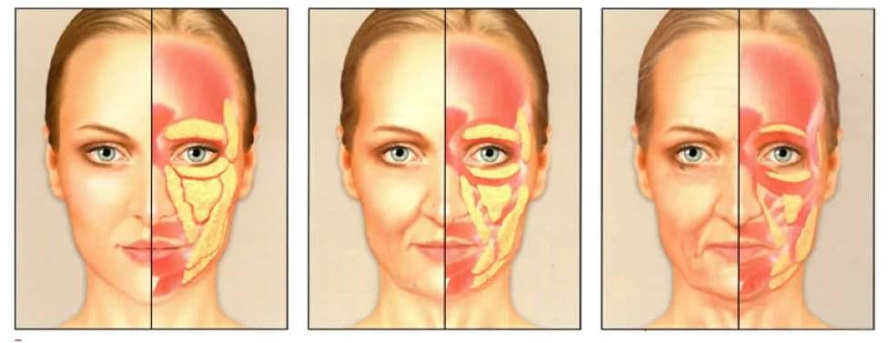 Smanjenje masnih naslaga na licu sa godinama