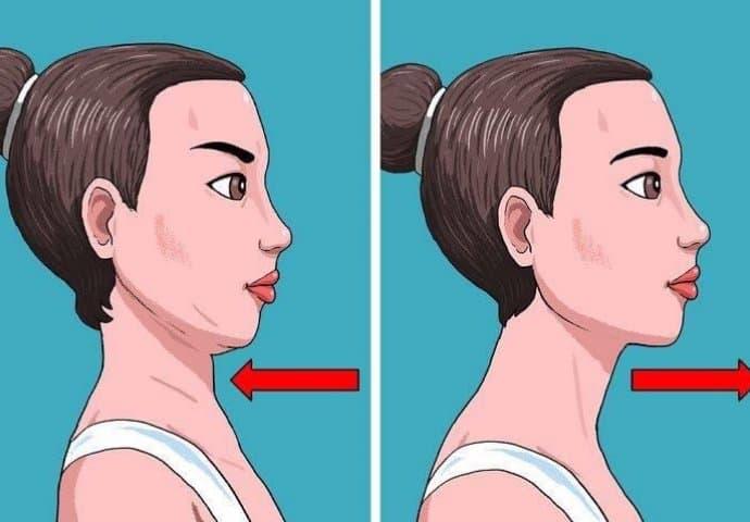 Kako držati glavu da ne nastane podbradak