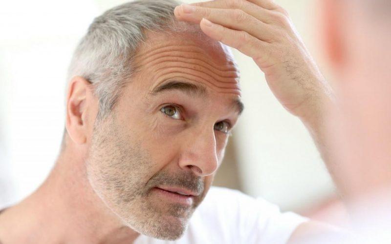 Presađivanje kose kod muškaraca